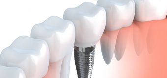 All your burning concerns regarding dental implants addressed