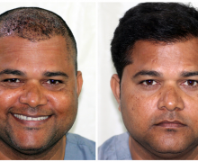 Get a makeover with hair transplant in Mumbai