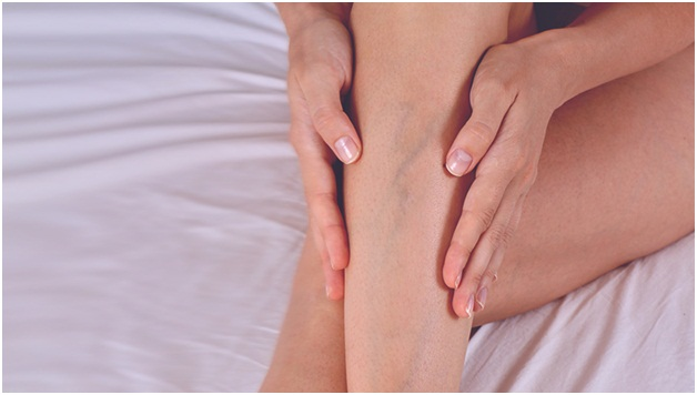 Getting to the Bottom of Varicose Vein Treatment